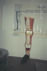 Orto-pr�tesis por agen�sia cong�nita, vista frontal