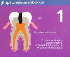 �en qu� consiste una endodoncia? (1)