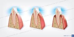 Ilustracion dientes seccionados