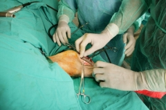 Cirug�a de traumatolog�a de alto nivel (tpo)