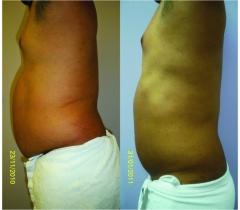 Antes y después de 11 sesiones con biocavity