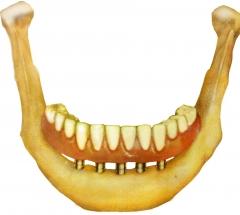 Con 4 implantes tenemos dentadura sin problemas