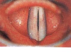 Anatom�a de la laringe