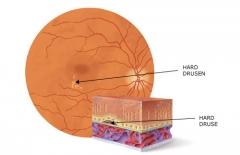 Esquema de formacion de drusas en retina