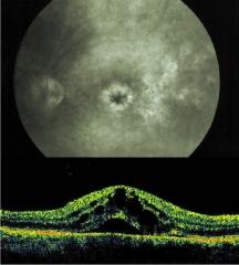 Edema macular cistoide