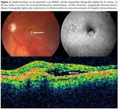 Degeneracion macular, 3 puntos de vista
