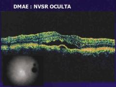 Membrana neovascular en dmae