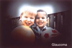 Así ve una persona con glaucoma avanzado