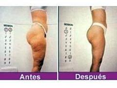 Tratamiento obesidad-mesoterapia corporal.