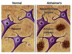 Depositos amiloide ( versus dmae-alzheimer) �?