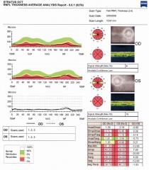 Glaucoma, deteccion precoz  �como tienes la cfn?  revision, por favor