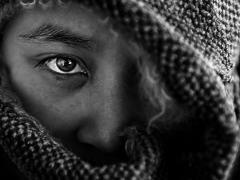 Glaucoma... , no te escondas