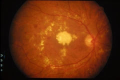 Da�o diabetico , ceguera central