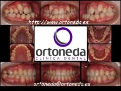Ortodoncia adultos. clase iii esquel�tica
