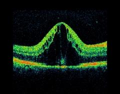 Edema macular diabetico