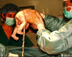 Extracci�n de beb� en ces�rea light