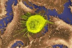 Celula cancer�gena