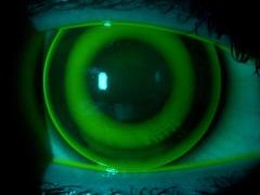 Adaptaci�n de lentes de terapia nocturna