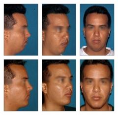 Rinoplastia, mentoplastia, blefaroplastia, aumento de labios, rejuvenecimiento facial, cirug�a ortog