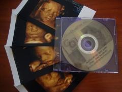 Ecograf�a 4d...dvd, fotos papel y almacenamiento digital.