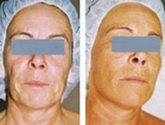 Tratamiento corrector de líneas y reafirmación facial (inyector electrónico exclusivo de lamdors)