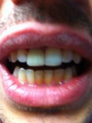 Est�tica dental: fractura de incisivos centrales