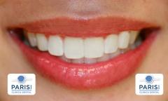 Cl�nica dental - parisi - madrid - carabanchel - vista alegre - http://www.clinicaparisi.es