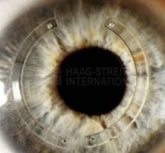 Cl�nica ocular estepona   dr. rodr�guez chico    - foto 8