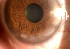 Cl�nica ocular estepona   dr. rodr�guez chico    - foto 1