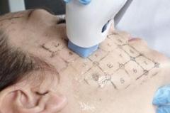 Thermage CPT-Rejuvenecimiento facial