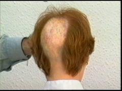 Protesis capilar a medida para todo tipo de alopecia
