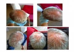 Evoluci�n tratamiento alopecia androgen�tica.