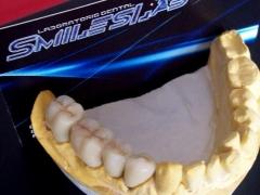 T�cnicos dentales en lanzarote - foto 3