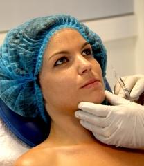 Rellenos faciales - botox