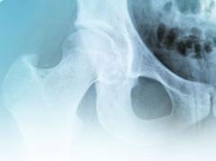 �rea de medicina osteoarticular