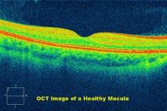Oct de alta definici�n de la m�cula (retina)