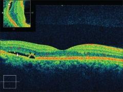 Oct retiniana de alta resolución mostrando desprendimiento del epitelio pigmentario con exudación de líquido ...