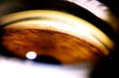 Gonioscopia ocular (estudio del glaucoma)