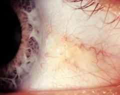 Pinguécula ocular