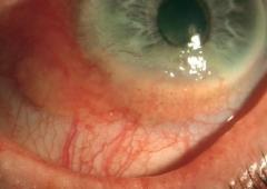 Carcinoma in situ conjuntival