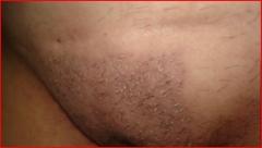 Pubis implante pelo  , post-quirurgico