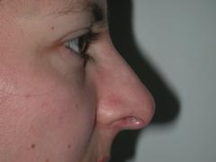 Sesi�n de rinomodelaci�n sin cirug�a: 20 mn despu�s de la sesion