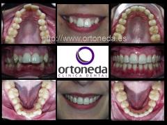 Ortodoncia est�tica adultos