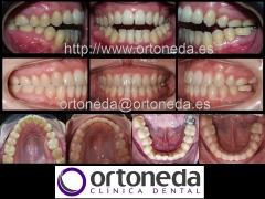 Ortodoncia adultos (mordida abierta)