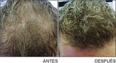Antes y despues de aplicar keratin, fibras capilares
